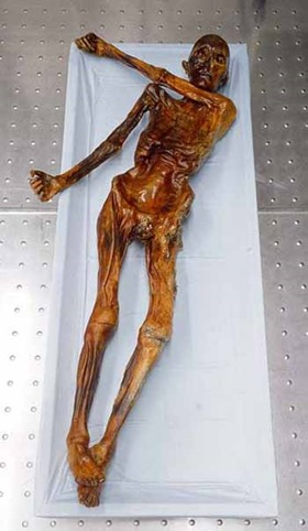 Ötzi the Iceman mummy